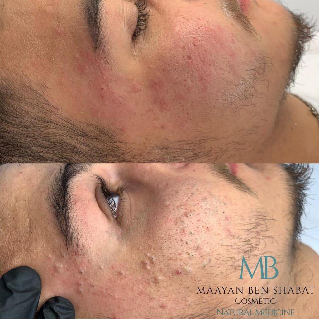 mb cosmetics טיפול לקוח טיפול פנים לגברים בצפון